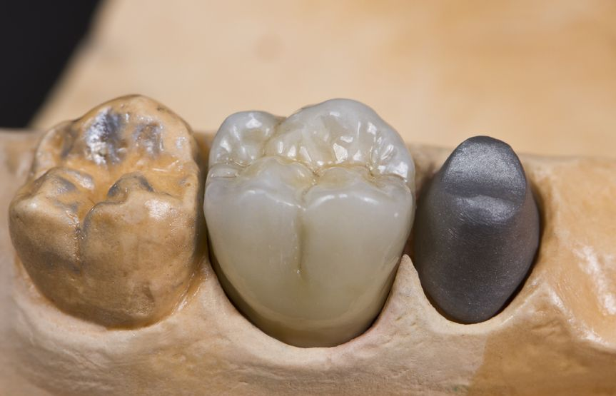 An example of a ceramic dental crown on a model jaw.