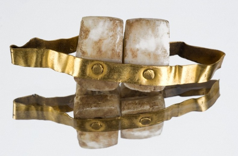 Etruscan bridges are among the oldest known dental prosthetics.