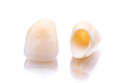 Crowns are simple, common, and made of a variety of materials, such as ceramic.